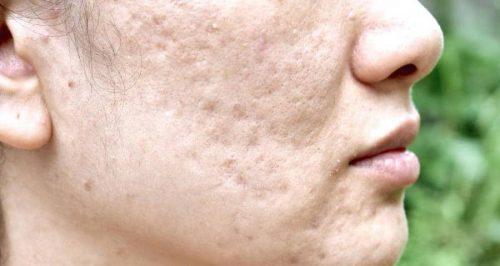 acne scars1